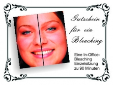 In-Office-Bleaching Einzelsitzung